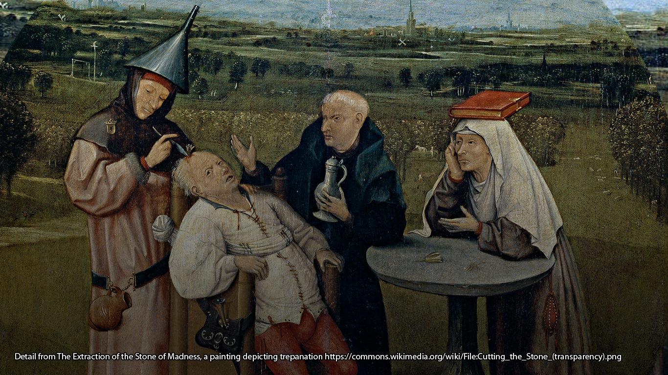 Detail from The Extraction of the Stone of Madness, a painting depicting trepanation https://commons.wikimedia.org/wiki/File:Cutting_the_Stone_(transparency).png
